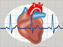 心脏病的心率失常 免版税库存照片