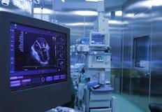 心脏的超声波监视在手术期间的 免版税库存照片