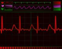 心脏监护器屏幕 库存例证