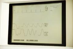 心脏监护器屏幕 免版税库存照片