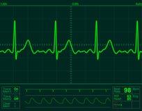 心脏监护器屏幕 免版税库存图片