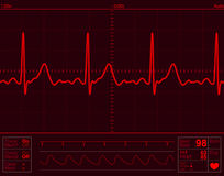 心脏监护器屏幕 图库摄影