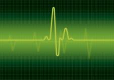 心脏监护器屏幕 库存图片