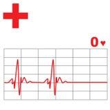 心脏监护器费率 免版税库存照片