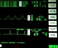 心脏监护器 免版税库存照片