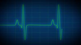 心脏监护器EKG 皇族释放例证