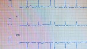 心脏脉冲线 在屏幕上显示的心电图学过程 股票视频