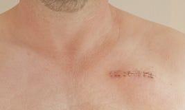 心脏起搏器伤痕 库存照片