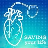 心脏起搏器身体 皇族释放例证