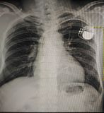 心脏起搏器 图库摄影