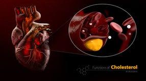 心脏,例子,封锁的血管,与胆固醇积累,例证的动脉,隔绝了黑色 免版税库存图片