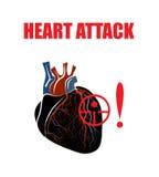 心脏 心肌的梗塞 库存图片