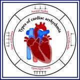 心脏结构 心律失常的类型 皇族释放例证