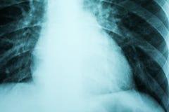 心脏X-射线 库存图片