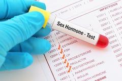 性激素测试 免版税库存照片