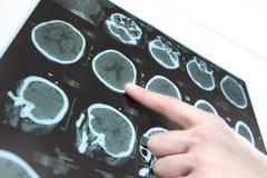 患者的脑子的CT扫描和医生的手。 免版税库存照片
