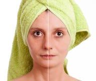 愈合的皮肤多斑点的妇女 免版税库存照片