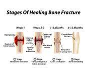 愈合骨折阶段  老茧的形成 骨折 Infographics 在隔绝的传染媒介例证 皇族释放例证