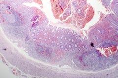 慢性肠痈病理组织学  库存图片