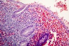 慢性肠痈病理组织学  免版税库存照片