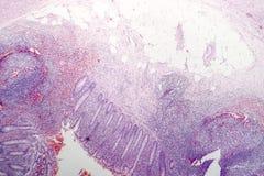 慢性肠痈病理组织学  图库摄影