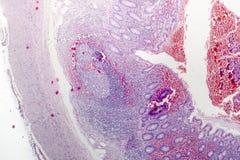 慢性肠痈病理组织学  免版税图库摄影