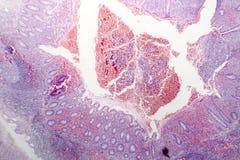 慢性肠痈病理组织学  免版税库存图片