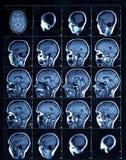 成人人的CT扫描 向量例证