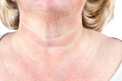 成熟妇女的老化皮肤 免版税库存图片