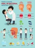 扁桃腺导致病毒或细菌感染 免版税图库摄影