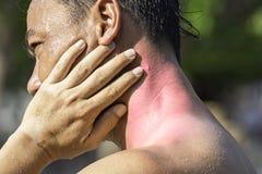 手夹住脖子从体育伤害的炎症 图库摄影