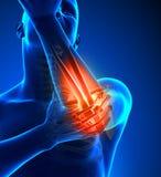 手肘痛苦男性-正面图 向量例证