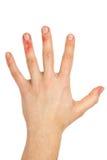 手指伤害了掌上型计算机 库存照片