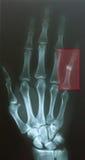 手指脱臼 库存照片
