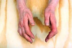 手的关节炎 库存照片