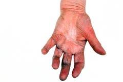 手的关节炎 免版税库存图片