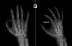 手的X-射线 显示右手的第二个手指的接近密集队的基地的破裂 标记 负 库存照片