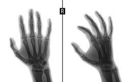手的X-射线 显示右手的第二个手指的接近密集队的基地的破裂 标记 负 免版税库存图片