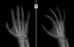 手的X-射线 显示右手的第二个手指的接近密集队的基地的破裂 免版税库存图片