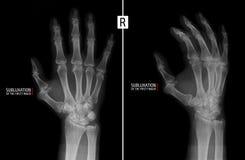 手的X-射线 显示右手的食指的接近密集队的半脱位 标记 免版税库存照片
