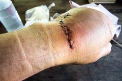 手缝合受伤与管乐器 免版税库存照片