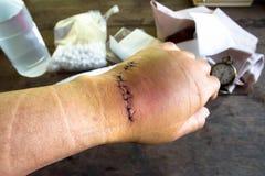 手缝合受伤与管乐器 库存图片