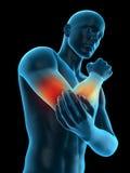 手肘痛苦 向量例证