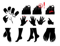 手,脚,钉子,钉子真菌,发痒和烧 库存图片