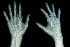 手破裂影片X-射线:显示破裂与k导线的掌骨插入物 免版税库存照片