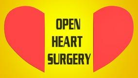 打开心脏手术概念 向量例证