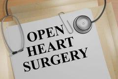 打开心脏手术-健康概念 免版税库存照片