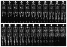 扫描人体 库存照片