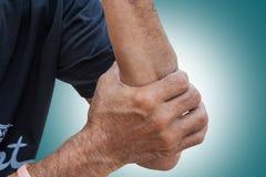 扭伤 肌肉在老人手上在背景中拉紧 库存照片