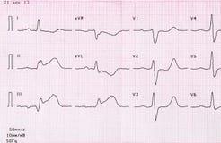 把与心肌梗塞的深刻期间的ECG录音 免版税库存照片